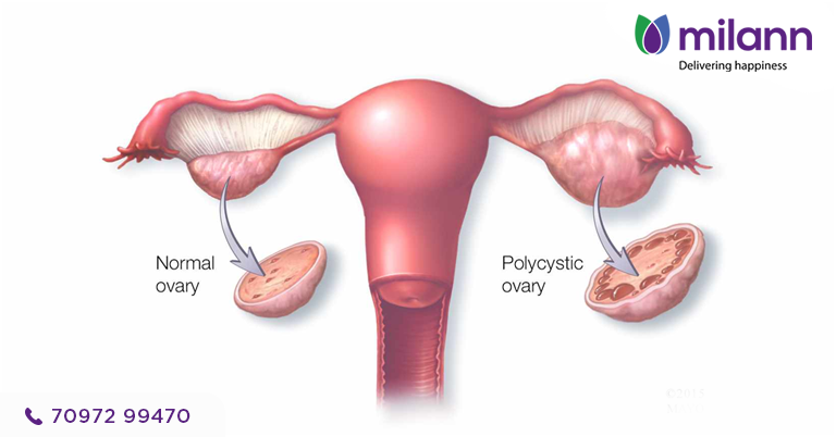PCOS More Common Than You Think